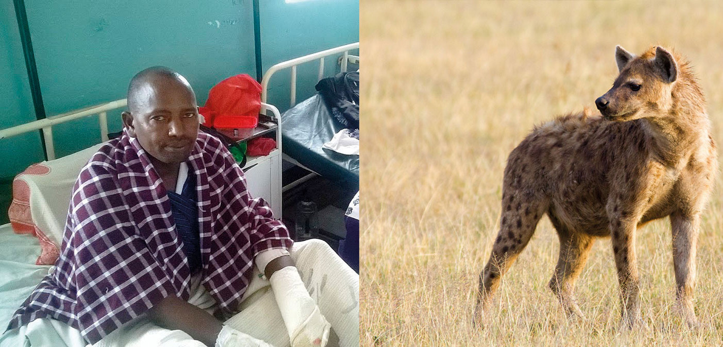 Læraren John Matipei på sjukehuset fire dagar etter hyeneåtaket. Flekkhyena er den vanlegaste av hyeneartane i Kenya. Skulderhøgda kan bli over 90 centimeter og vekta over 60 kilo, ifølgje Wikipedia. Foto: Kurgat Marindany/The Star,  Mariomassone/Wikimedia Commons
